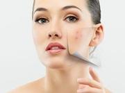 Атравматическая (химическая) чистка лица